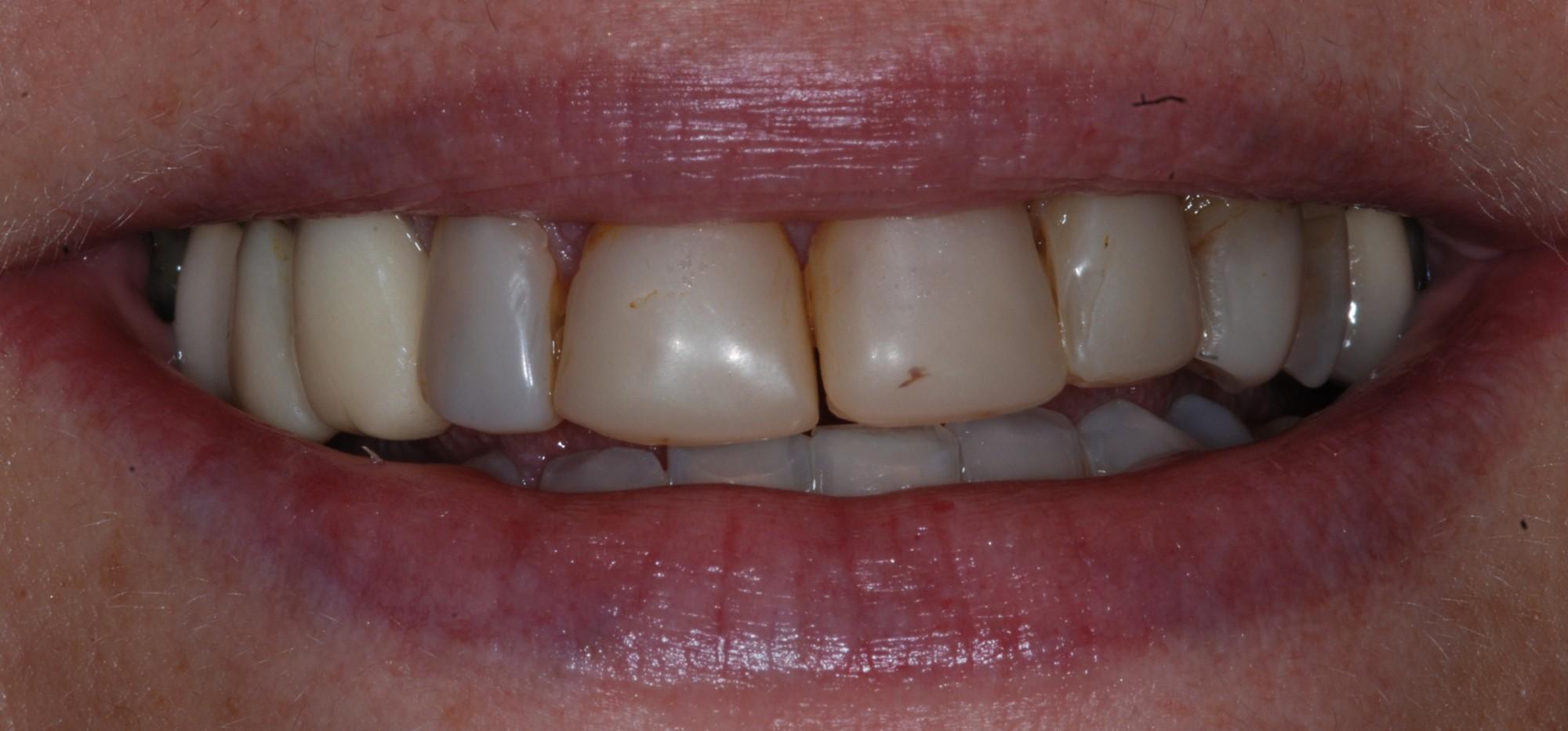 Réhabilitation esthétique avec soucis BIOMIMETIQUE (Dr Lugari-Aubagne 13) Parution «Prothèse Dentaire Française» Octobre 2015
