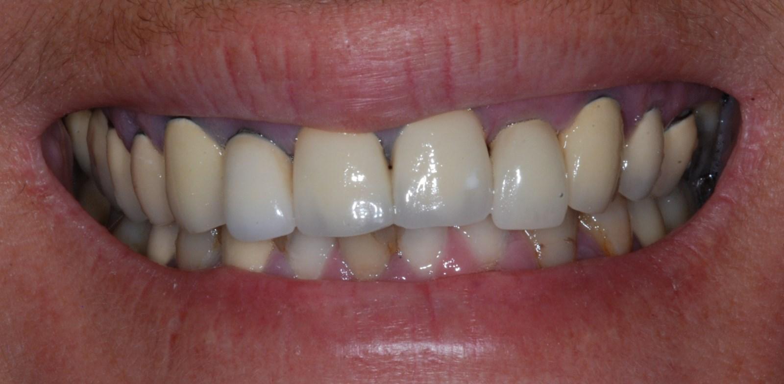 Bridge anterieur maxillaire surpressé…Parution 'Prothèse Dentaire Française' Mai/juin 2015 ( Dr Monleau J-d / Vitrolles)