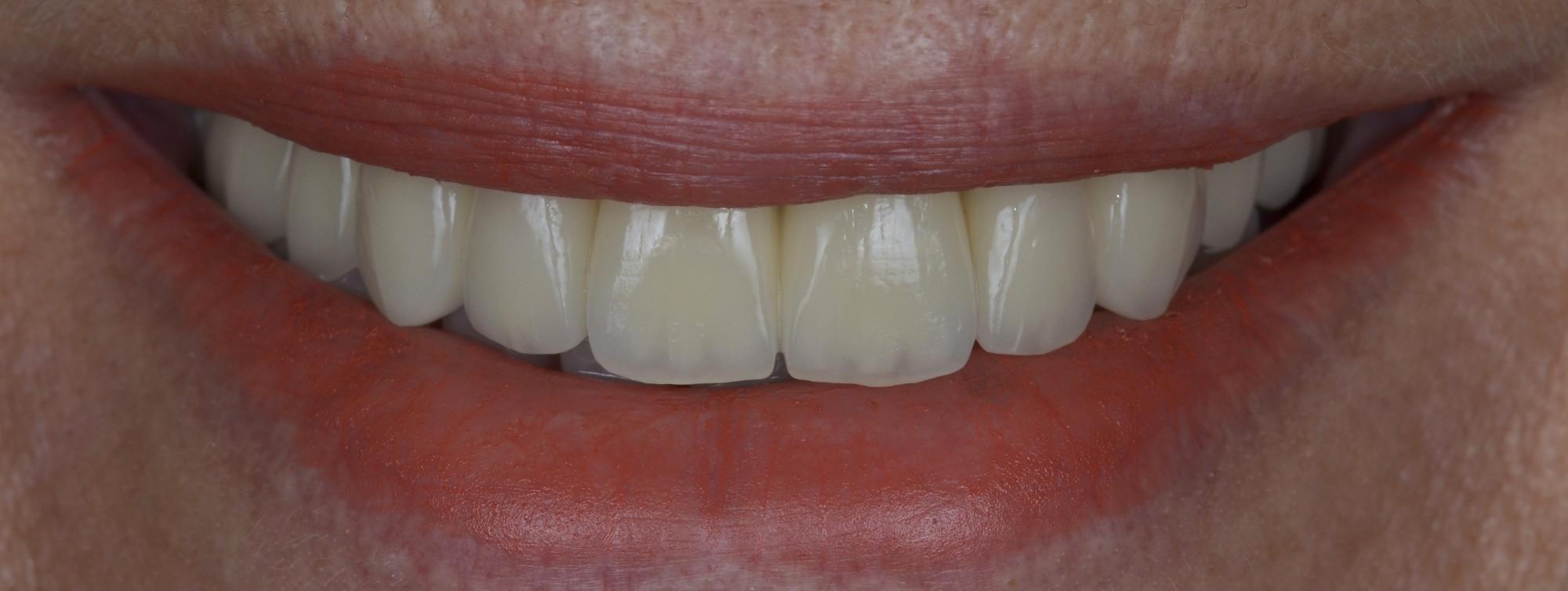 Bridge complet implantaire céramique (Technologie dentaire 2015 178/336_Dr G-Bianca Marseille/Dr P-Viret Vitrolles)