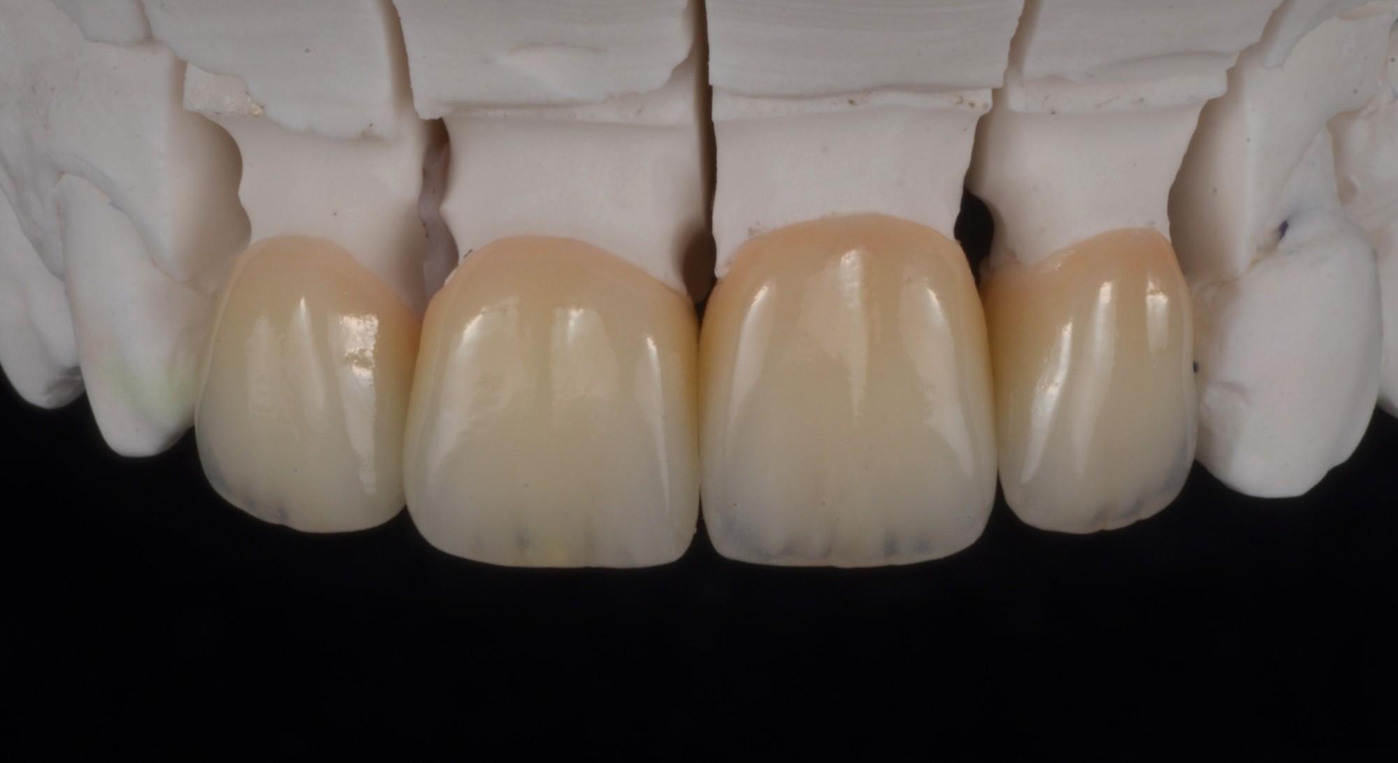 Zircone stratifiée et Emax stratifiée, mariage possible( Dr Lugari) Parution technologie dentaire n°397- 01/20