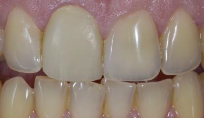 centrale unitaire prothese dent