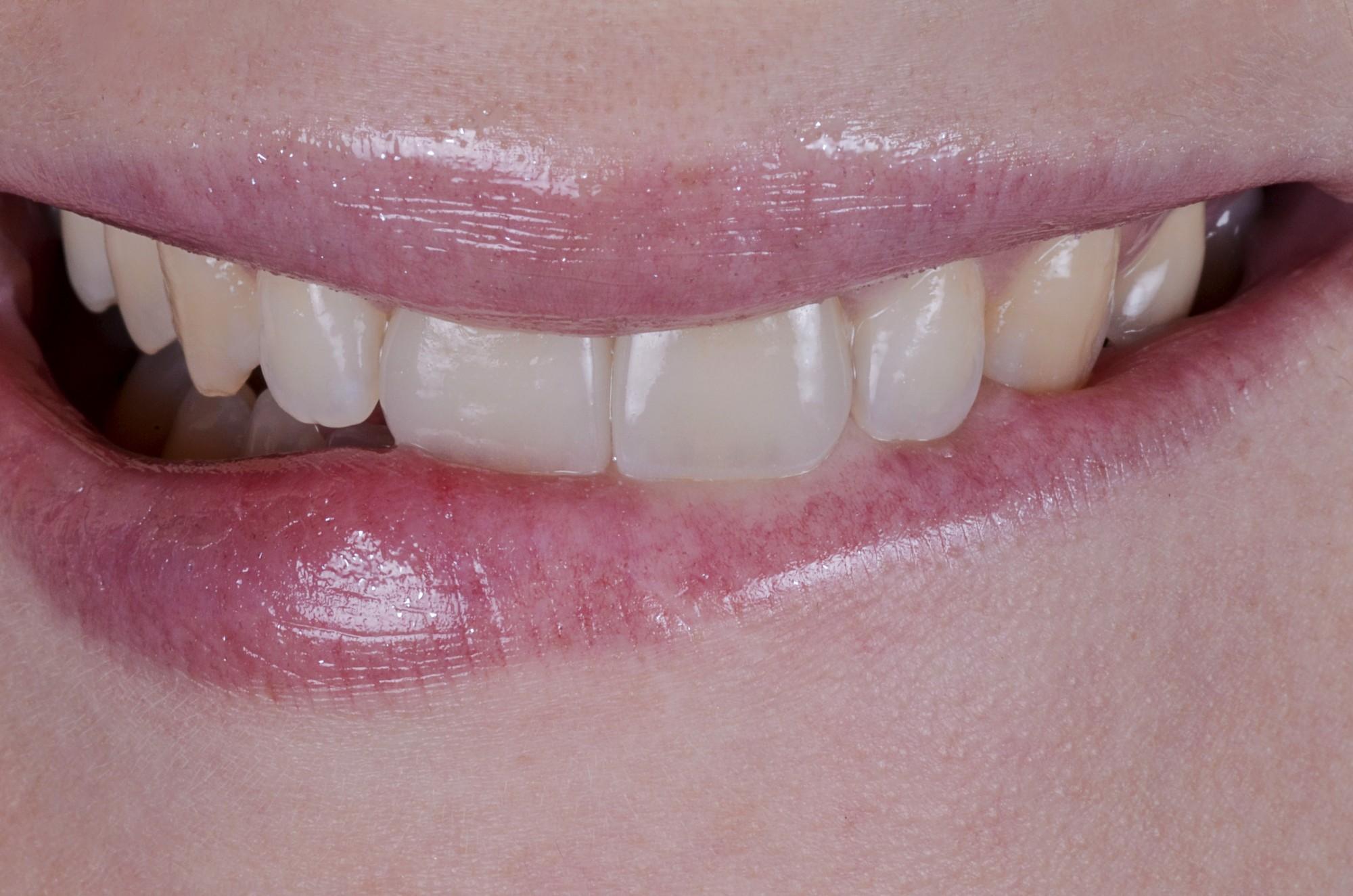 Elsa : Réhabilitation esthétique de deux centrales maxillaires. Parution LABLINE SPRING 2015 (Dr C.Choisy-Velaux13)