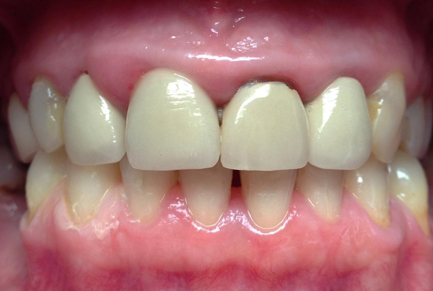 Du transitoire au définitif (Dr Dubois) parution technologie dentaire février 2016