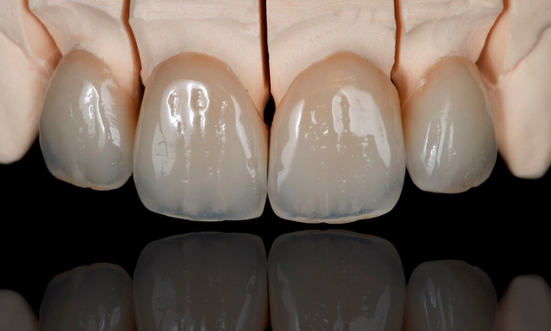 Prothesiste dentaire videos
