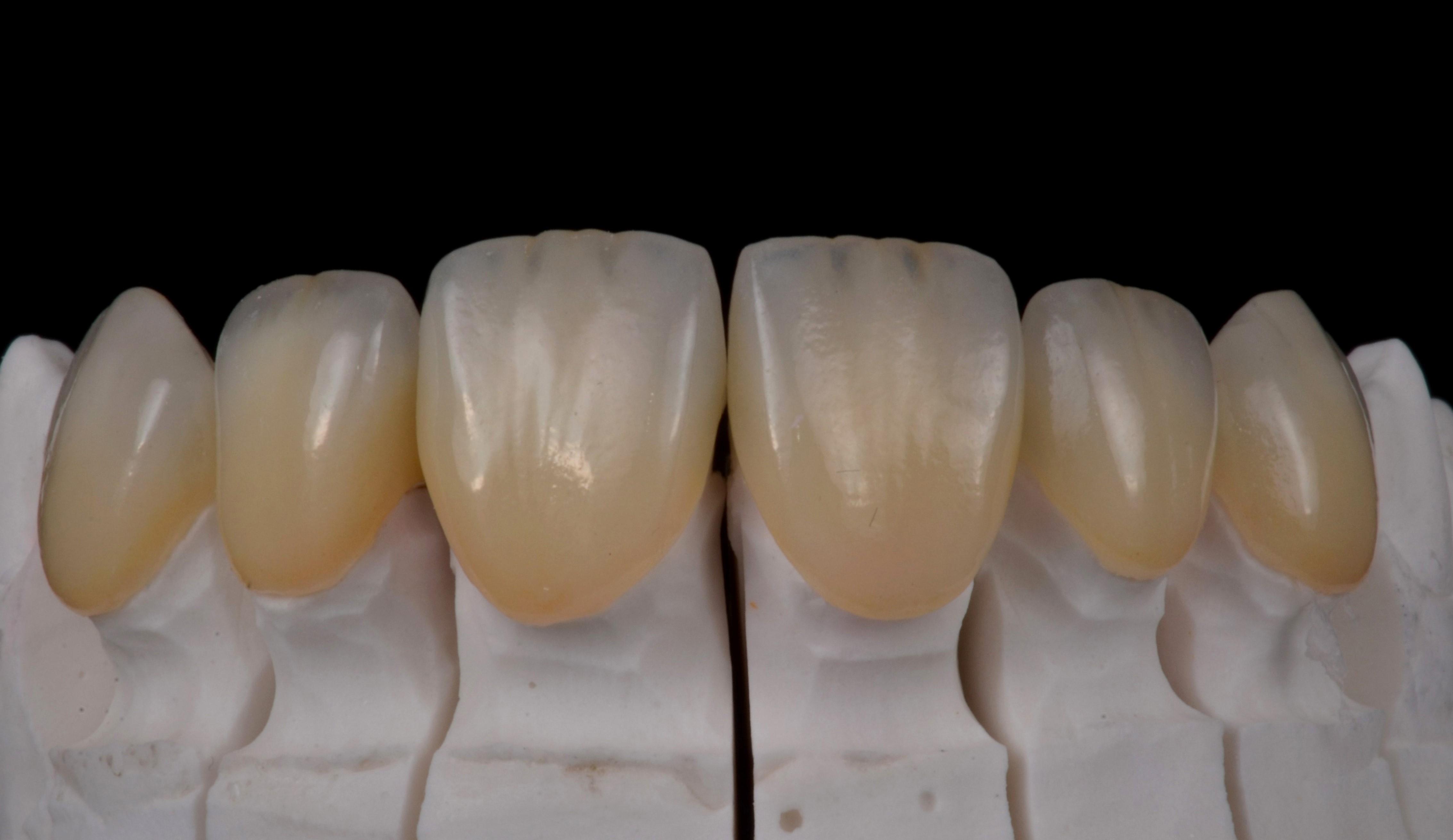 Haute esthétique (Dr Monleau) parution Technologie Dentaire 393 09/19