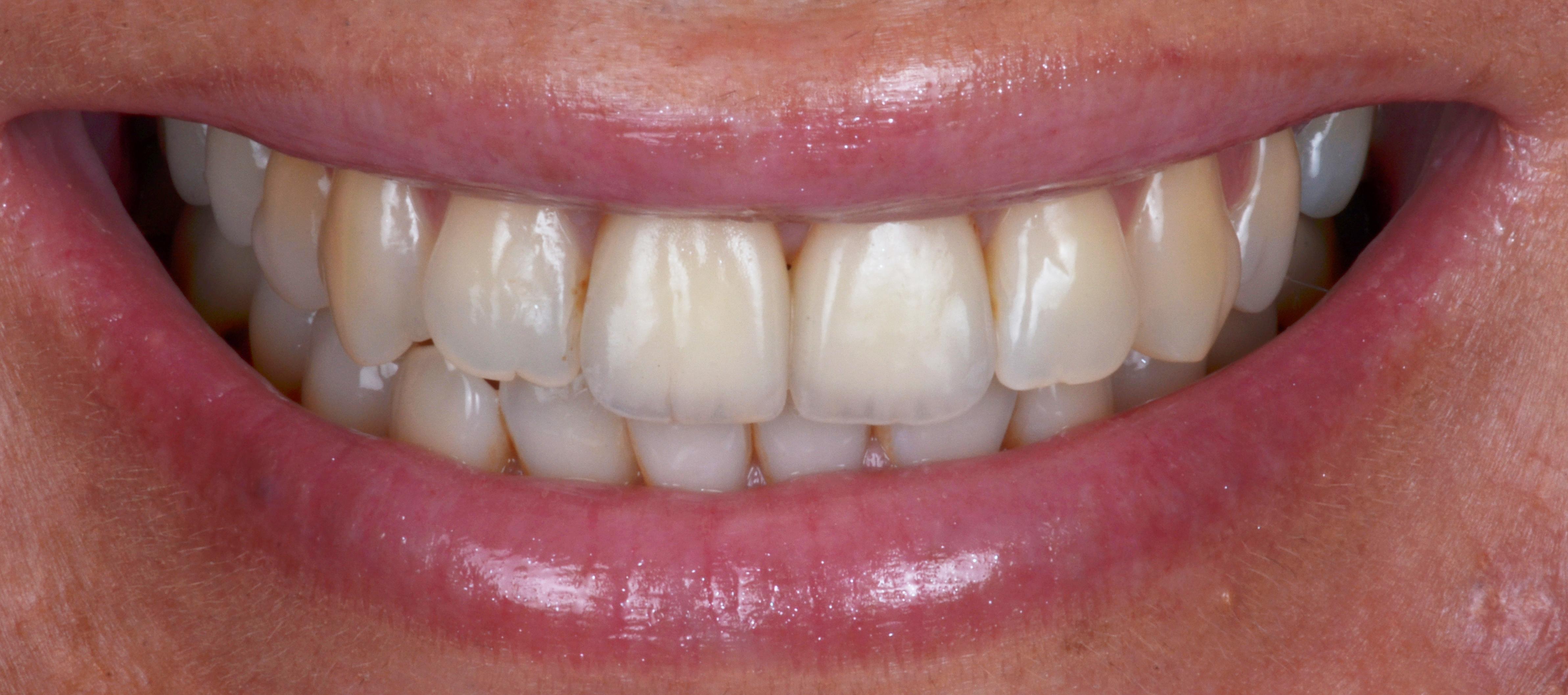 Haute esthétique en implantologie (Dr Bianca G) parution technologie dentaire N° 400 – 04/20